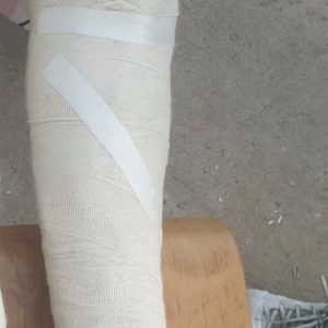 "Border Violence Monitoring Network, ""They Stamped on his Leg, Causing it to Break,"" 14 July 2020, https://www.borderviolence.eu/violence-reports/july-14-2020-0000-near-vinkovci-croatia/"